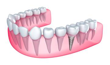 Phases of Dental Implant Treatment
