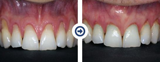 Before & After of Pinhole Surgical Technique performed by Dr. Scharf of Long Island