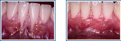 Treatment for Receding Gums Long Island